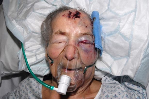 Two arrested after attack on a 93-year-old woman who was severely beaten in her own home