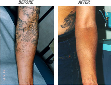 Tattoo Removal Before And After – Half Sleeve